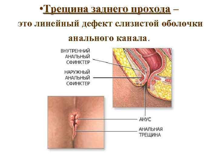 • Трещина заднего прохода – это линейный дефект слизистой оболочки анального канала.