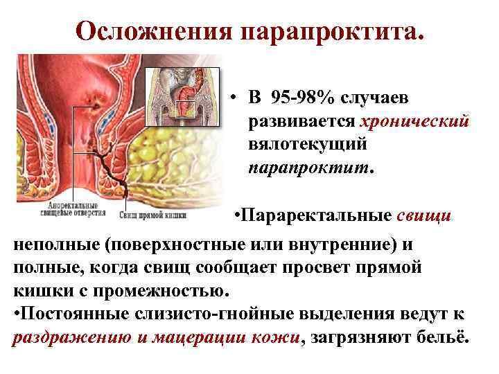 Осложнения парапроктита. • В 95 -98% случаев развивается хронический вялотекущий парапроктит. • Параректальные свищи
