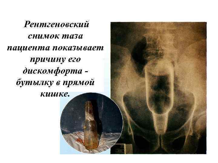 Рентгеновский снимок таза пациента показывает причину его дискомфорта бутылку в прямой кишке.
