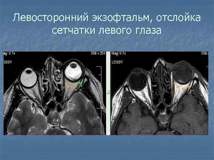 Левосторонний экзофтальм, отслойка сетчатки левого глаза