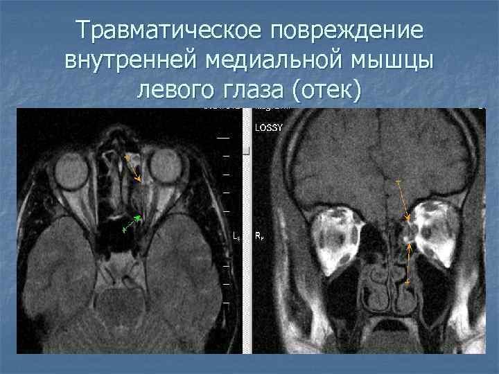 Травматическое повреждение внутренней медиальной мышцы левого глаза (отек)