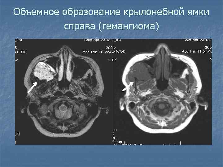 Объемное образование крылонебной ямки справа (гемангиома)