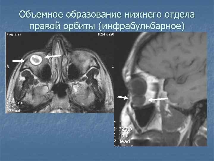 Объемное образование нижнего отдела правой орбиты (инфрабульбарное)