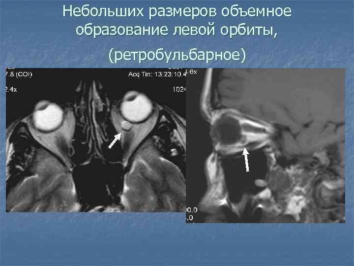 Небольших размеров объемное образование левой орбиты, (ретробульбарное)