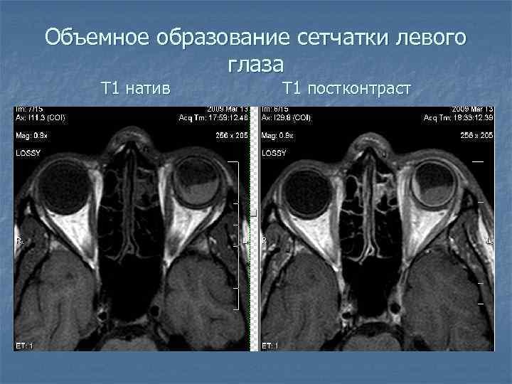Объемное образование сетчатки левого глаза Т 1 натив Т 1 постконтраст