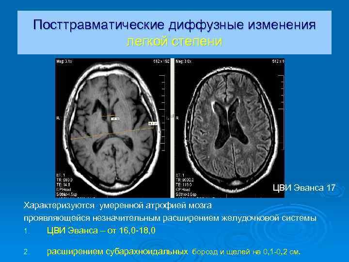 Умеренно выраженные атрофические изменения мозжечка