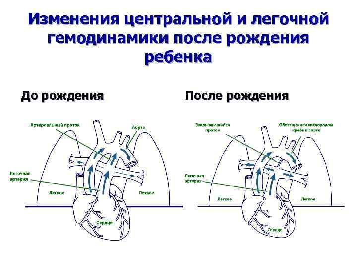 Изменения центральной и легочной гемодинамики после рождения ребенка До рождения После рождения