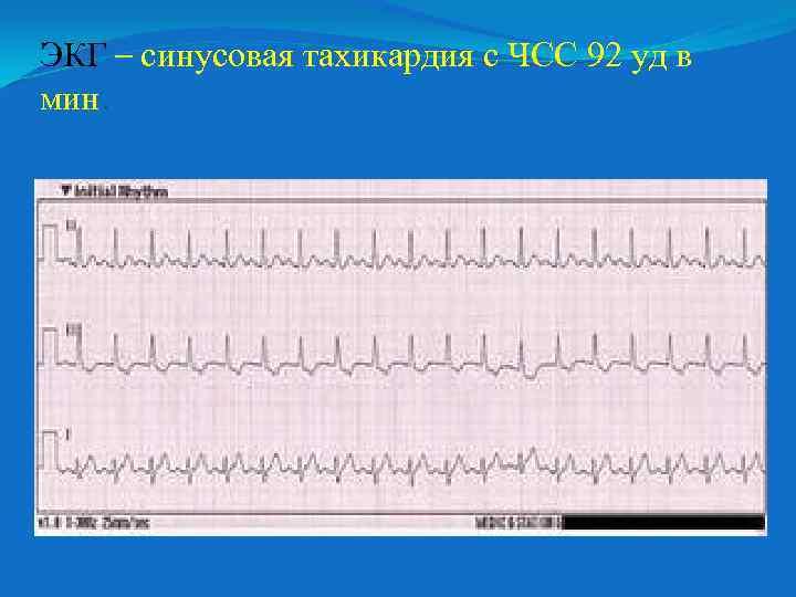 Синусовая тахикардия у беременных 87