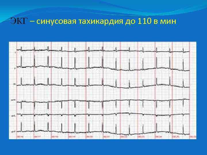 ЭКГ – синусовая тахикардия до 110 в мин