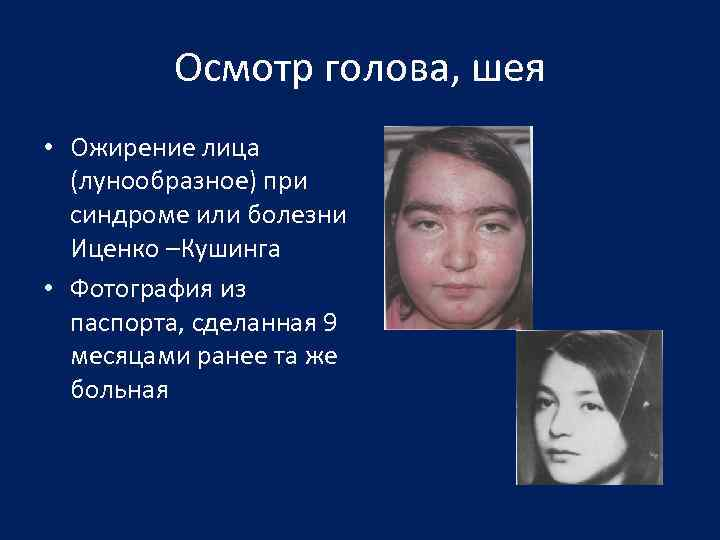 Осмотр голова, шея • Ожирение лица (лунообразное) при синдроме или болезни Иценко –Кушинга •