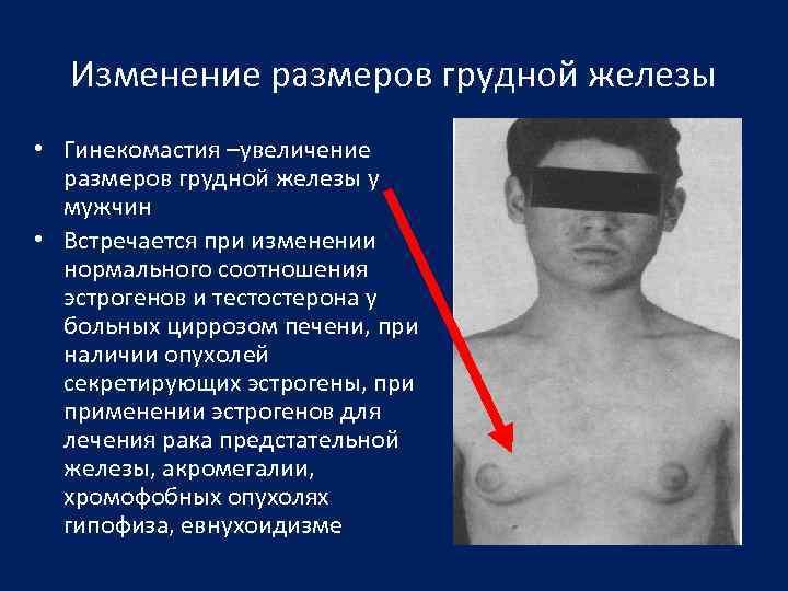 Изменение размеров грудной железы • Гинекомастия –увеличение размеров грудной железы у мужчин • Встречается