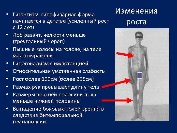 • Гигантизм гипофизарная форма начинается в детстве (усиленный рост с 12 лет) •