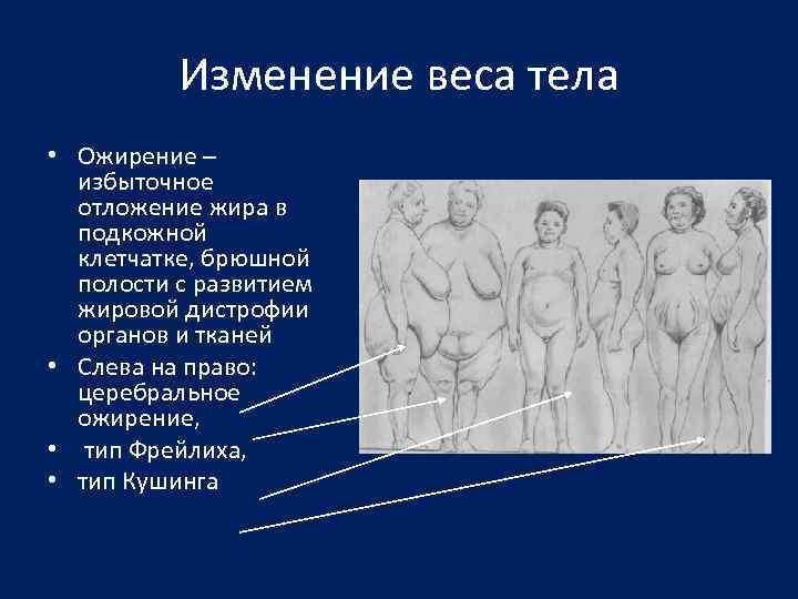 Изменение веса тела • Ожирение – избыточное отложение жира в подкожной клетчатке, брюшной полости