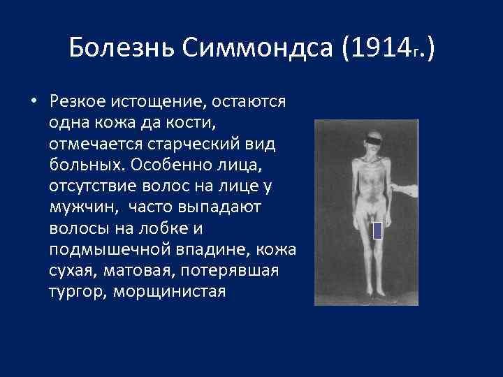 Болезнь Симмондса (1914 г. ) • Резкое истощение, остаются одна кожа да кости, отмечается