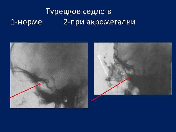 Турецкое седло в 1 -норме 2 -при акромегалии