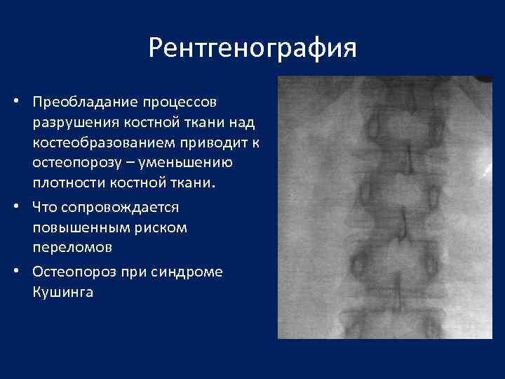 Рентгенография • Преобладание процессов разрушения костной ткани над костеобразованием приводит к остеопорозу – уменьшению