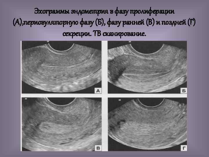 Эхограммы эндометрия в фазу пролиферации (А), периовуляторную фазу (Б), фазу ранней (В) и поздней