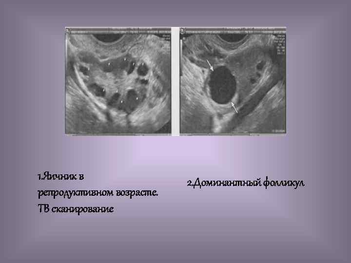 1. Яичник в репродуктивном возрасте. ТВ сканирование 2. Доминантный фолликул