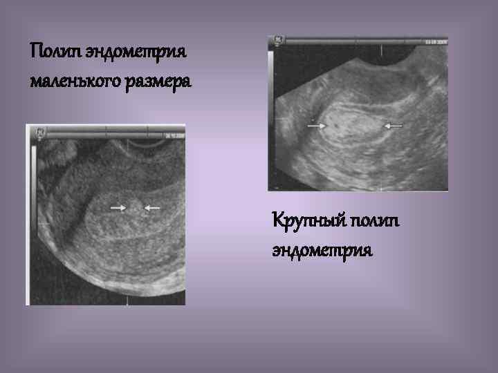 Полип эндометрия маленького размера Крупный полип эндометрия