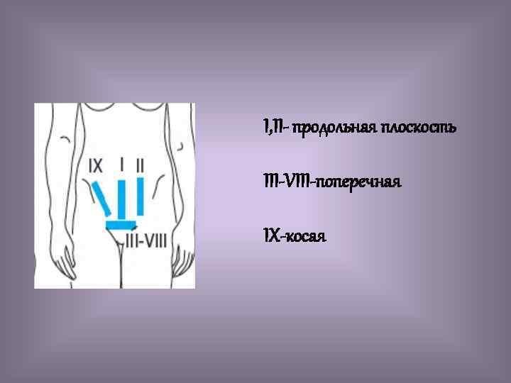 I, II- продольная плоскость III-VIII-поперечная IX-косая