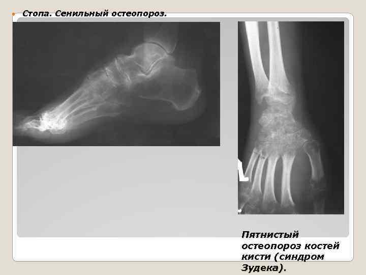 Пятнистый остеопороз кисти что это
