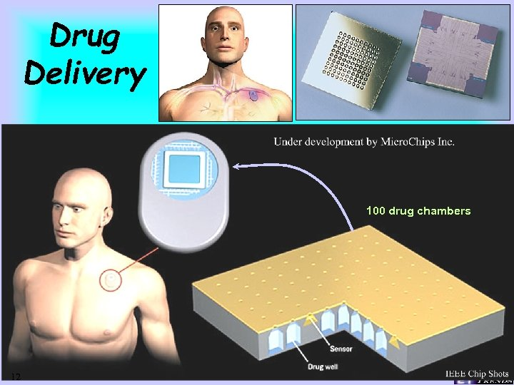 Drug Delivery 100 drug chambers 12