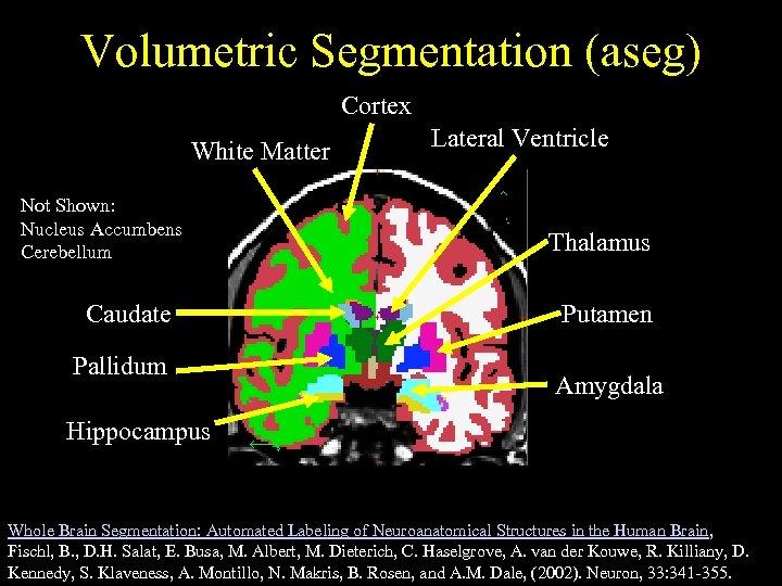 Volumetric Segmentation (aseg) Cortex White Matter Not Shown: Nucleus Accumbens Cerebellum Caudate Pallidum Lateral