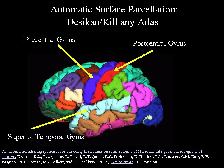 Automatic Surface Parcellation: Desikan/Killiany Atlas Precentral Gyrus Postcentral Gyrus Superior Temporal Gyrus An automated
