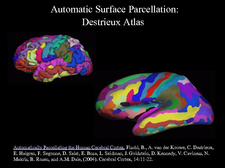 Automatic Surface Parcellation: Destrieux Atlas Automatically Parcellating the Human Cerebral Cortex, Fischl, B. ,