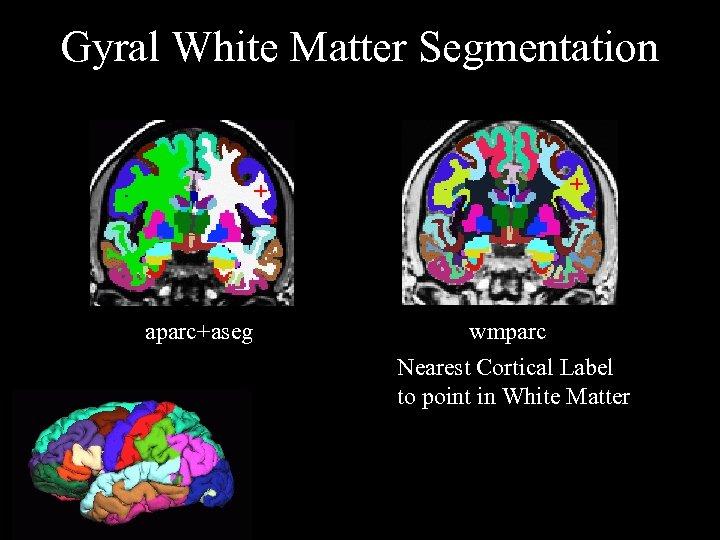 Gyral White Matter Segmentation + aparc+aseg + wmparc Nearest Cortical Label to point in