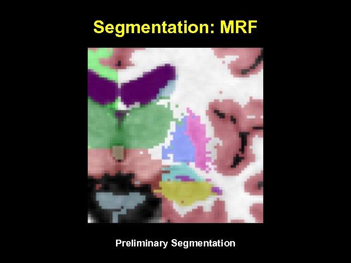Segmentation: MRF Preliminary Segmentation