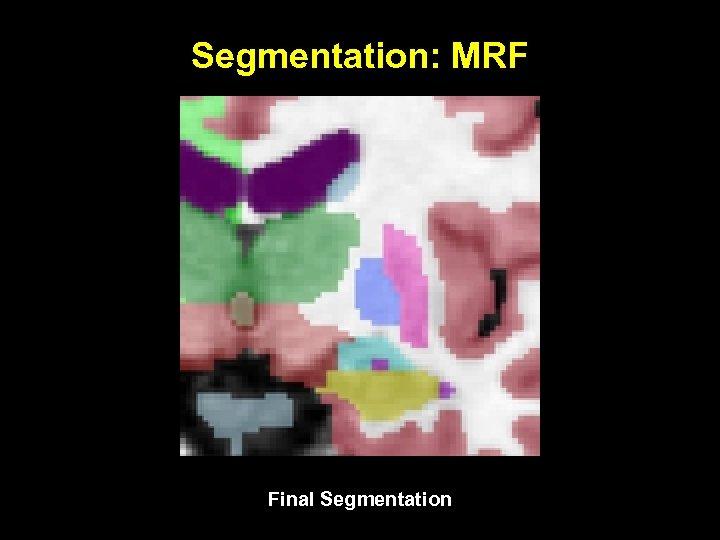 Segmentation: MRF Final Segmentation