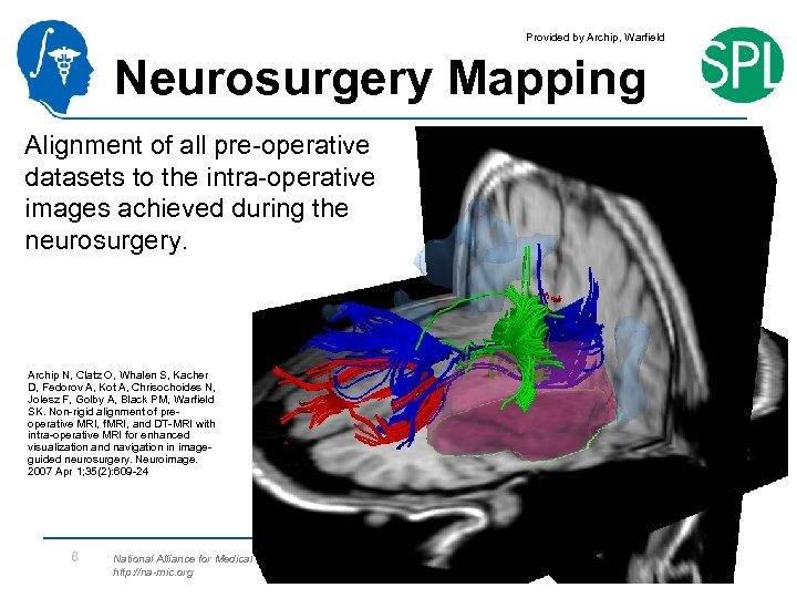 Provided by Archip, Warfield Neurosurgery Mapping Alignment of all pre-operative datasets to the intra-operative