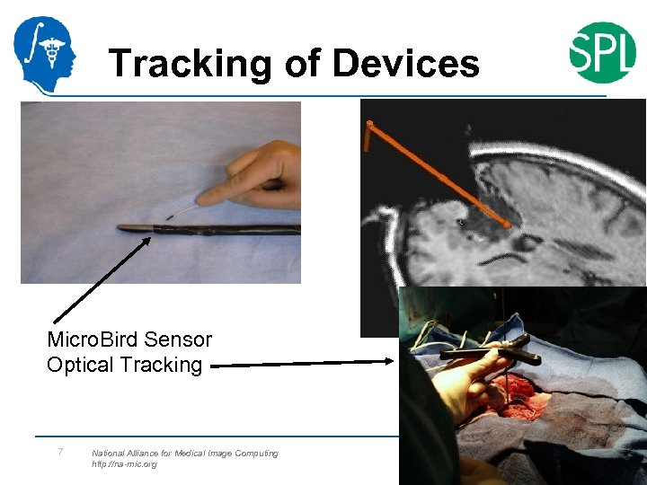 Tracking of Devices Micro. Bird Sensor Optical Tracking 7 National Alliance for Medical Image