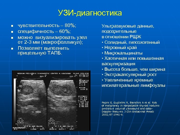 УЗИ-диагностика n n чувствительность – 80%; специфичность – 60%; можно визуализировать узел от 2