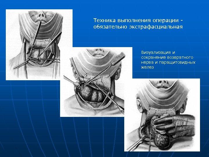 Техника выполнения операции - обязательно экстрафасциальная Визуализация и сохранение возвратного нерва и паращитовидных желез