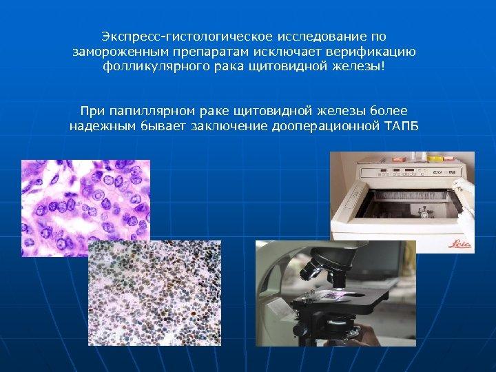 Экспресс-гистологическое исследование по замороженным препаратам исключает верификацию фолликулярного рака щитовидной железы! При папиллярном раке