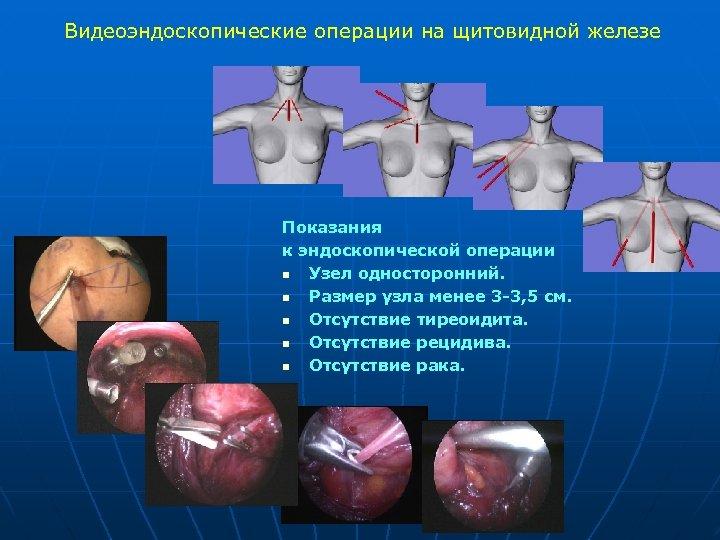 Видеоэндоскопические операции на щитовидной железе Показания к эндоскопической операции n Узел односторонний. n Размер