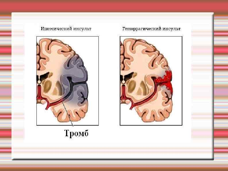 hipertenzija be insulto