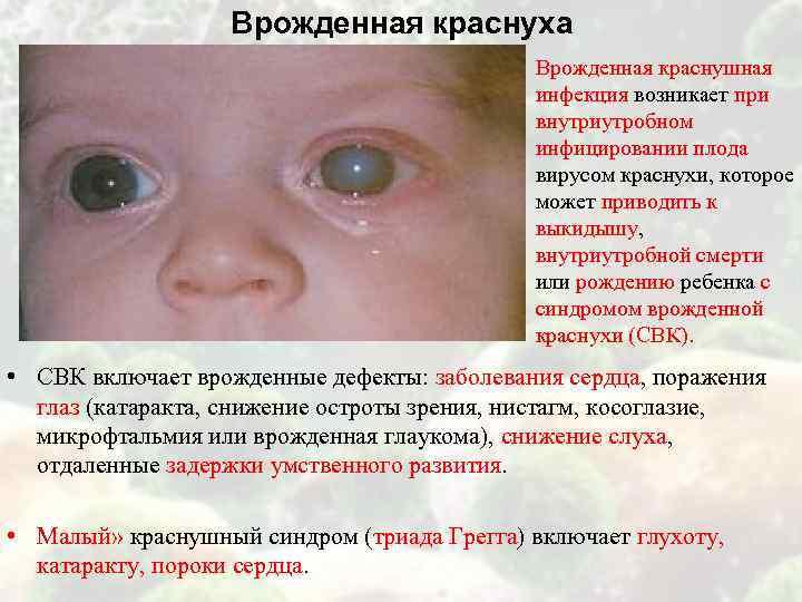 Врожденная краснуха Врожденная краснушная инфекция возникает при внутриутробном инфицировании плода вирусом краснухи, которое может