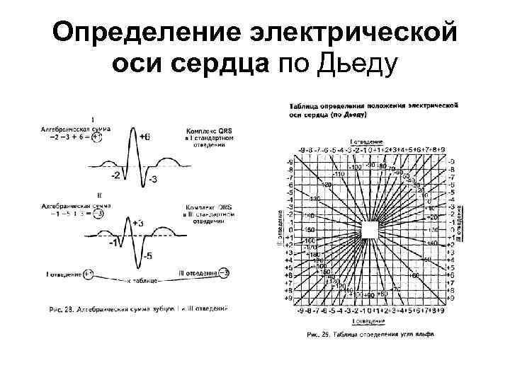Определение эос картинка