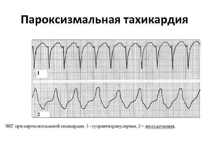 Пароксизмальная тахикардия на экг картинки