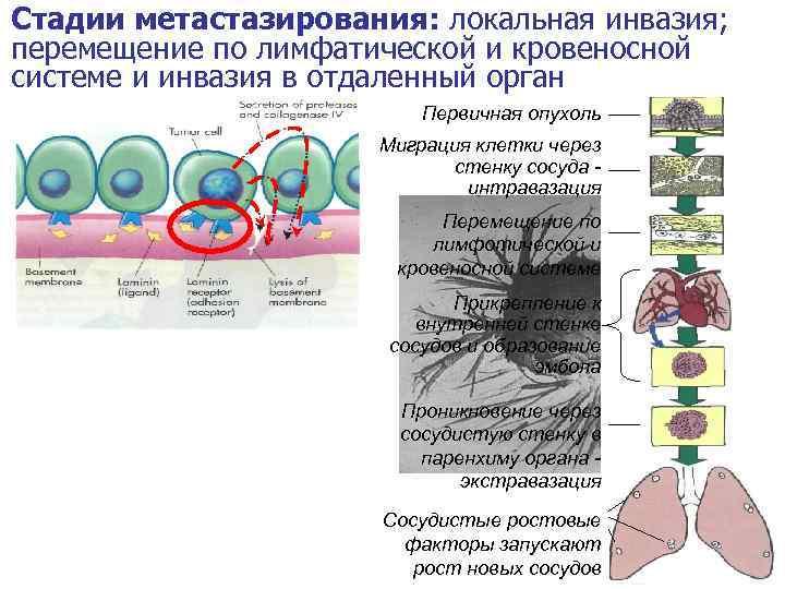 Стадии метастазирования: локальная инвазия; перемещение по лимфатической и кровеносной системе и инвазия в отдаленный
