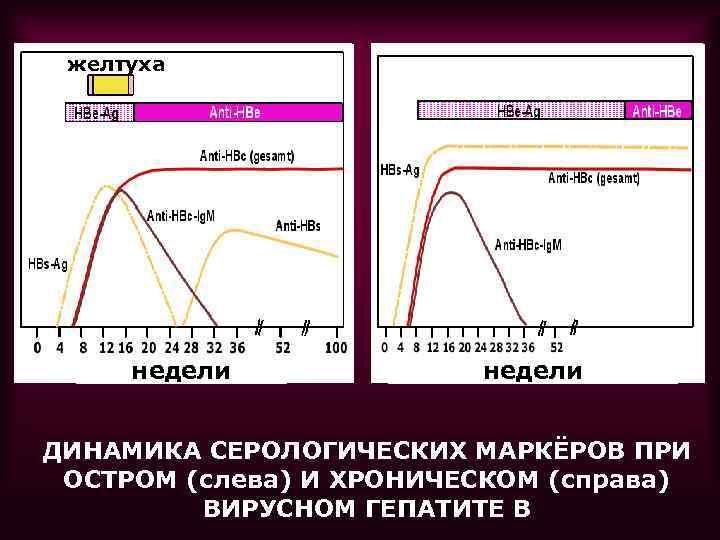 желтуха недели ДИНАМИКА СЕРОЛОГИЧЕСКИХ МАРКЁРОВ ПРИ ОСТРОМ (слева) И ХРОНИЧЕСКОМ (справа) ВИРУСНОМ ГЕПАТИТЕ В