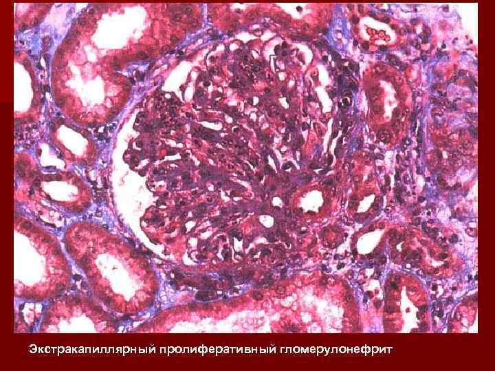 Экстракапиллярный пролиферативный гломерулонефрит