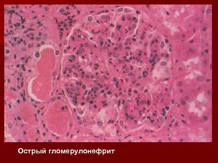 Острый гломерулонефрит
