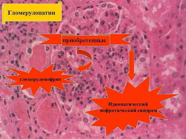 Гломерулопатии приобретенные гломерулонефрит Идиопатический нефротический синдром