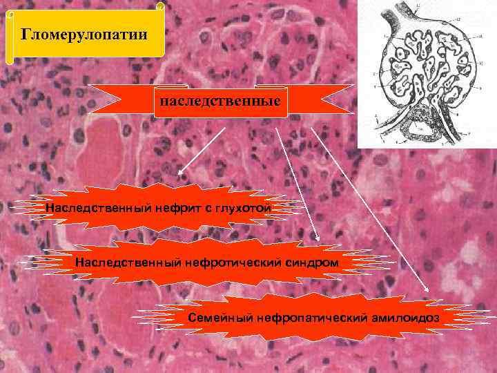 Гломерулопатии наследственные Наследственный нефрит с глухотой Наследственный нефротический синдром Семейный нефропатический амилоидоз