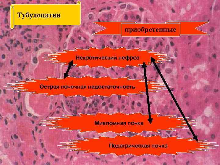 Тубулопатии приобретенные Некротический нефроз Острая почечная недостаточность Миеломная почка Подагрическая почка