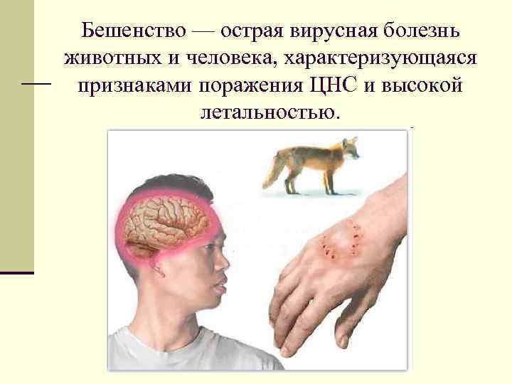 Бешенство — острая вирусная болезнь животных и человека, характеризующаяся признаками поражения ЦНС и высокой